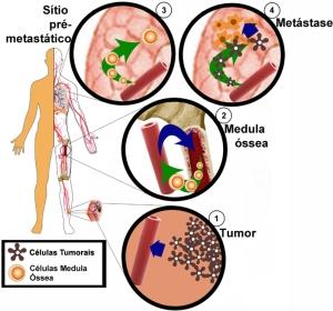 Metástases tumorais iniciam muito antes do que se imagina