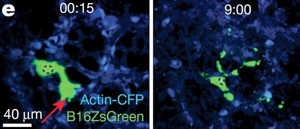 """Por injecção intravenosa, as células tumorais (verde) chegam em segundos ao pulmão (células do pulmão a azul) (imagem da esquerda). Nos capilares do pulmão, as células tumorais fragmentam-se em menos de 8h, originando micropartículas tipo """"zombie"""" (imagem da direita). Adaptado de Headley et al, Nature, 2016."""